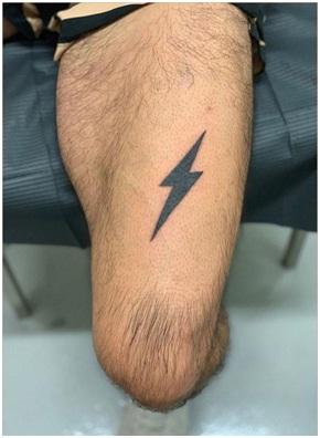 Event Director Arnel San Pedro's new lightning bolt tattoo from Jonny G